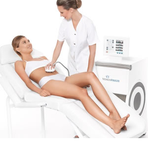 Venus Freeze behandeling